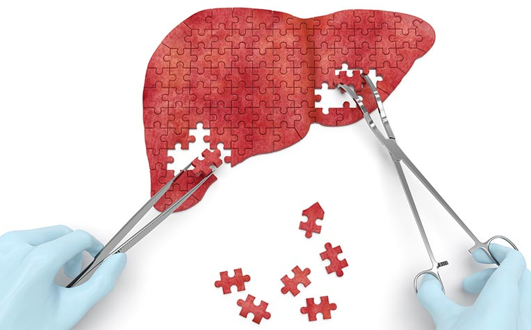 liver cirrhosis treatment